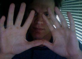Kyle Hand Pics